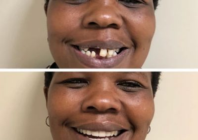 Cosmetic Dentistry: Before and After