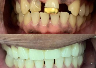 Cosmetic Dentistry: Before and After. Another Happy Patient. Work done by Cahi Dental Practice