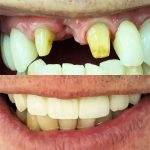 Dental Implants: Missing Teeth Image before and After