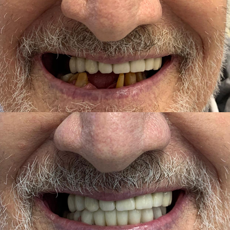 Dental Implants: Before and After done by Cahi Dental Practice